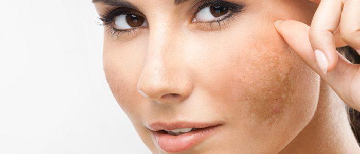 Melasma le macchie sul viso - Chirurgo plastico e medico estetico Dr. Antonio Corezzola