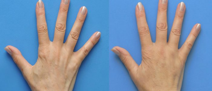 Chirurgia Plastica Venezia - ringiovanimento mani